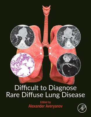 Difficult to Diagnose Rare Diffuse Lung Disease-cover
