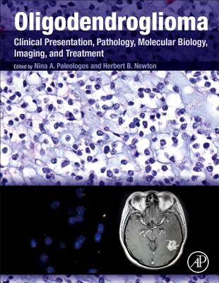 Oligodendroglioma: Clinical Presentation, Pathology, Molecular Biology, Imaging, and Treatment-cover
