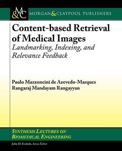 Content-based Retrieval of Medical Images: Landmarking, Indexing, and Relevance Feedback (Paperback)-cover