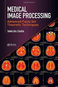 Medical Image Processing: Advanced Fuzzy Set Theoretic Techniques Hardcover