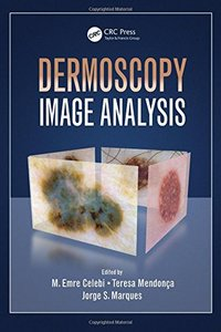 Dermoscopy Image Analysis (Digital Imaging and Computer Vision)-cover
