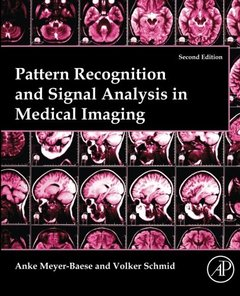 Pattern Recognition and Signal Analysis in Medical Imaging, (2/e)(Paperback reprint of hardcover 2014edition)-cover