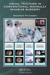 Visual Tracking in Conventional Minimally Invasive Surgery-cover