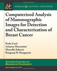 Computerized Analysis of Mammographic Images for Detection and Characterization of Breast Cancer (Synthesis Lectures on Biomedical Engineering)-cover