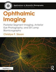 Ophthalmic Imaging: Posterior Segment Imaging, Anterior Eye Photography, and Slit Lamp Biomicrography (Applications in Scientific Photography)-cover