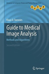 Guide to Medical Image Analysis: Methods and Algorithms (Advances in Computer Vision and Pattern Recognition)-cover