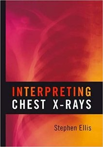 Interpreting Chest X-Rays-cover